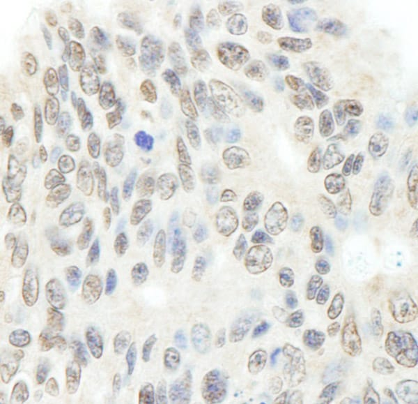 Immunohistochemistry (Formalin/PFA-fixed paraffin-embedded sections) - Anti-Topoisomerase II beta/TOP2B antibody (ab72334)