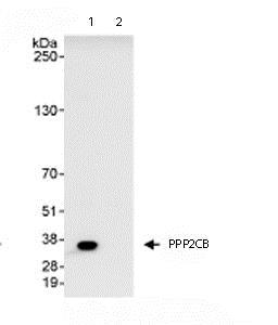 Immunoprecipitation - Anti-PPP2CB antibody (ab72343)