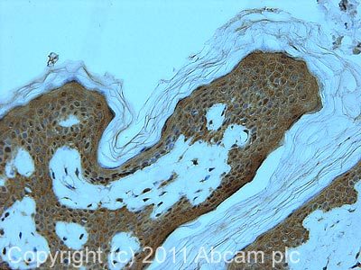 Immunohistochemistry (Formalin/PFA-fixed paraffin-embedded sections) - Anti-EDC4 antibody (ab72408)