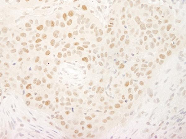 Immunohistochemistry (Formalin/PFA-fixed paraffin-embedded sections) - Anti-KIFC1 antibody (ab72452)
