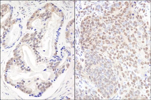 Immunohistochemistry (Formalin/PFA-fixed paraffin-embedded sections) - Anti-EFTUD2 antibody (ab72456)