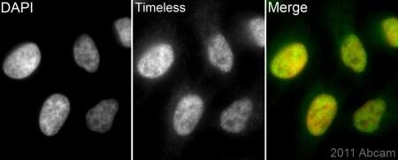 Immunocytochemistry/ Immunofluorescence - Anti-Timeless antibody (ab72458)