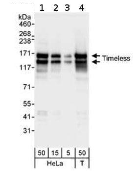 Western blot - Anti-Timeless antibody (ab72458)