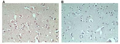 Immunohistochemistry (Formalin/PFA-fixed paraffin-embedded sections) - Anti-RNF128/GRAIL antibody (ab72533)