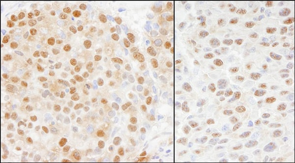 Immunohistochemistry (Formalin/PFA-fixed paraffin-embedded sections) - Anti-Cullin 4A/CUL-4A antibody (ab72548)