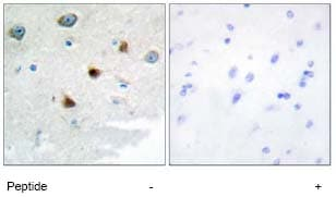Immunohistochemistry (Formalin/PFA-fixed paraffin-embedded sections) - Anti-DUSP4 antibody (ab72593)