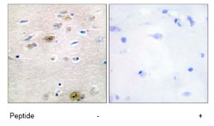 Immunohistochemistry (Formalin/PFA-fixed paraffin-embedded sections) - Anti-TRA2A antibody (ab72625)