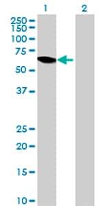 Western blot - Anti-PRCP antibody (ab72942)