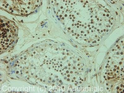 Immunohistochemistry (Formalin/PFA-fixed paraffin-embedded sections) - Anti-TNP1 antibody (ab73135)