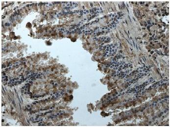 Immunohistochemistry (Formalin/PFA-fixed paraffin-embedded sections) - Anti-Eph receptor A2 antibody [RM-0051-8F21] (ab73254)
