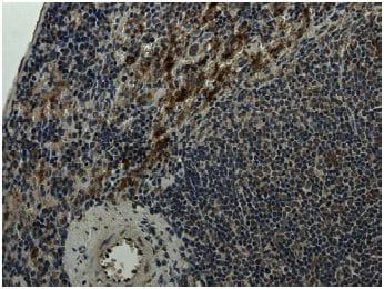 Immunohistochemistry (Formalin/PFA-fixed paraffin-embedded sections) - Anti-Integrin alpha 4+beta 7 antibody [RM0059-2G18] (ab73261)