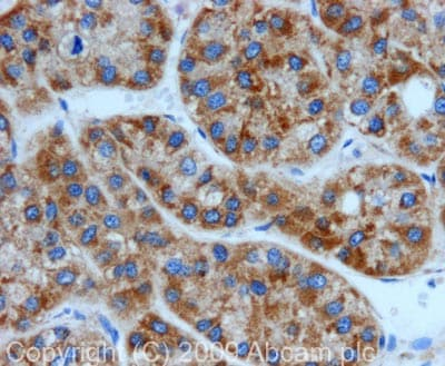 Immunohistochemistry (Formalin/PFA-fixed paraffin-embedded sections) - Anti-Peroxiredoxin 3/PRDX3 antibody (ab73349)