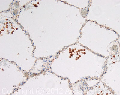Immunohistochemistry (Formalin/PFA-fixed paraffin-embedded sections) - Anti-Rab34 antibody (ab73383)