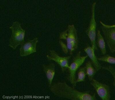 Immunocytochemistry/ Immunofluorescence - Anti-Rab34 antibody (ab73383)