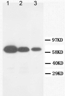 Western blot - Anti-MMP16 antibody (ab73877)