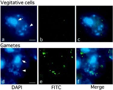 Immunocytochemistry/ Immunofluorescence - Anti-5-methylcytosine (5-mC) antibody [5MC-CD] (ab73938)