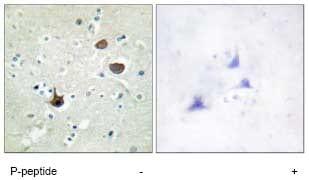 Immunohistochemistry (Formalin/PFA-fixed paraffin-embedded sections) - Anti-CXCR4 (phospho S339) antibody (ab74012)