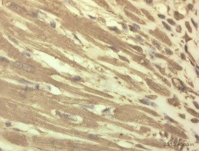Immunohistochemistry (Formalin/PFA-fixed paraffin-embedded sections) - Anti-Fbx32 antibody (ab74023)