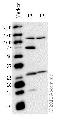 Western blot - Anti-MASH1/Achaete-scute homolog 1 antibody (ab74065)