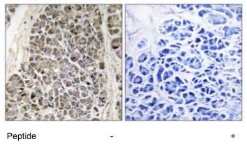 Immunohistochemistry (Formalin/PFA-fixed paraffin-embedded sections) - Anti-MRPS21 antibody (ab74101)