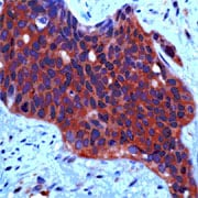 Immunohistochemistry (Formalin/PFA-fixed paraffin-embedded sections) - Anti-Met (c-Met) antibody (ab74217)