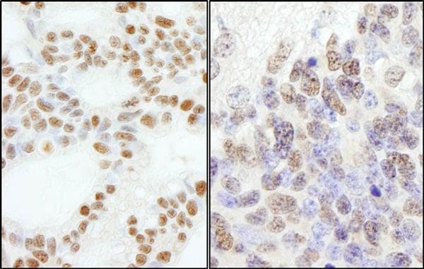 Immunohistochemistry (Formalin/PFA-fixed paraffin-embedded sections) - Anti-CHRAC-17 antibody (ab74308)