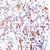 Immunohistochemistry (Formalin/PFA-fixed paraffin-embedded sections) - Anti-LY75 antibody [SPM487] (ab74344)