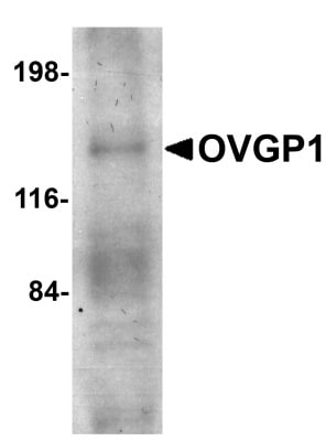 Western blot - Anti-OVGP1/OGP antibody (ab74544)