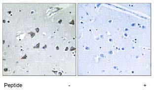 Immunohistochemistry (Formalin/PFA-fixed paraffin-embedded sections) - Anti-EIF3F antibody (ab74568)