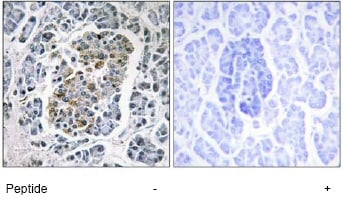 Immunohistochemistry (Formalin/PFA-fixed paraffin-embedded sections) - Anti-SSBP1 antibody (ab74710)