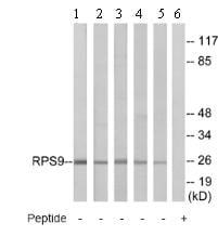 Western blot - Anti-RPS9 antibody (ab74711)