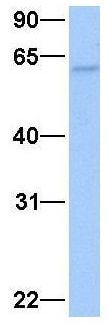 Western blot - Anti-hIPS antibody (ab74721)
