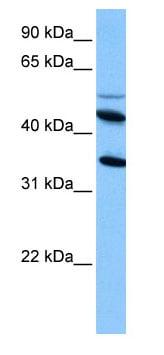 Western blot - Anti-IL13 receptor alpha 2 antibody (ab74730)