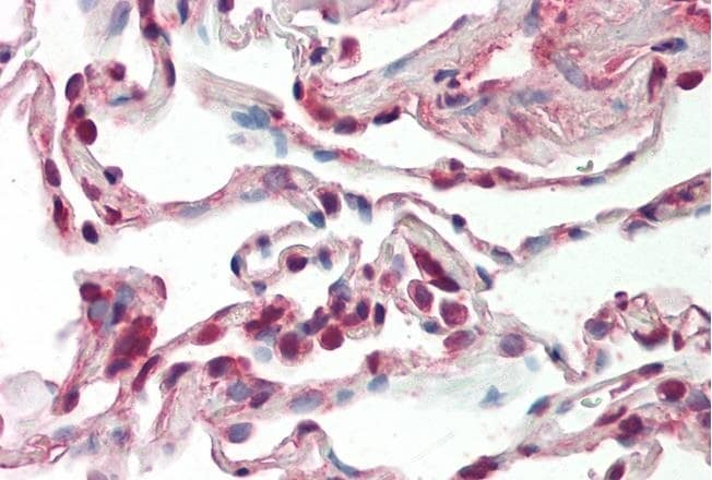 Immunohistochemistry paraffin embedded sections - Anti-SFRS9/SRSF9 antibody (ab74782)