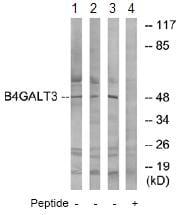 Western blot - Anti-B4GALT3 antibody (ab74825)