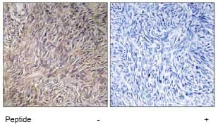 Immunohistochemistry (Formalin/PFA-fixed paraffin-embedded sections) - Anti-FGF22 antibody (ab74860)