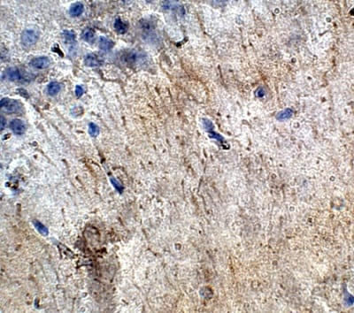 Immunohistochemistry (Formalin/PFA-fixed paraffin-embedded sections) - Anti-ACTH antibody (ab74976)