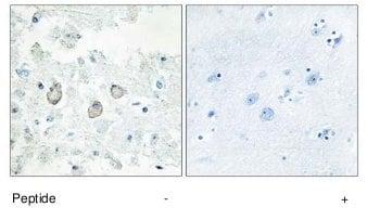 Immunohistochemistry (Formalin/PFA-fixed paraffin-embedded sections) - Anti-DOK7 antibody (ab75049)