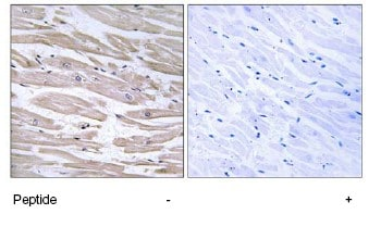 Immunohistochemistry (Formalin/PFA-fixed paraffin-embedded sections) - Anti-EDJ antibody (ab75107)