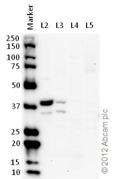 Western blot - Anti-Lactate Dehydrogenase B/LDH-B antibody (ab75167)