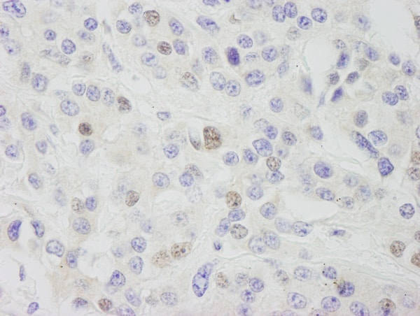 Immunohistochemistry (Formalin/PFA-fixed paraffin-embedded sections) - Anti-INTS11 antibody (ab75276)