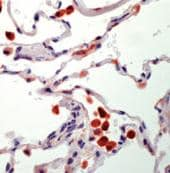 Immunohistochemistry (Formalin/PFA-fixed paraffin-embedded sections) - Anti-Tartrate Resistant Acid Phosphatase antibody [26E5], prediluted (ab75452)