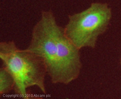Immunocytochemistry/ Immunofluorescence - Anti-P2X3 antibody (ab75453)