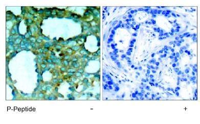 Immunohistochemistry (Formalin/PFA-fixed paraffin-embedded sections) - Anti-PAK1 (phospho T212) antibody (ab75599)