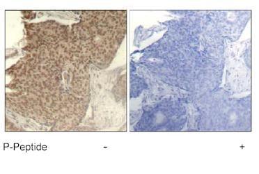 Immunohistochemistry (Formalin/PFA-fixed paraffin-embedded sections) - Anti-HDAC2 (phospho S394) antibody (ab75602)