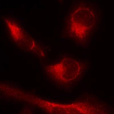 Immunocytochemistry/ Immunofluorescence - Anti-Tau (phospho S356) antibody (ab75603)