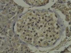 Immunohistochemistry (Formalin/PFA-fixed paraffin-embedded sections) - Anti-Estrogen Receptor alpha antibody (ab75635)