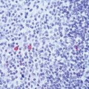 Immunohistochemistry (Formalin/PFA-fixed paraffin-embedded sections) - Anti-IgE antibody, prediluted (ab75673)