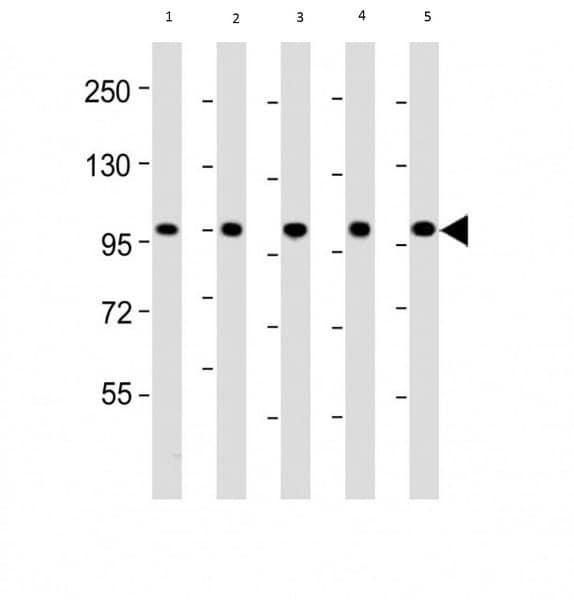 Western blot - Anti-LGR5 antibody (ab75732)