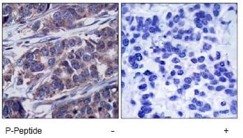 Immunohistochemistry (Formalin/PFA-fixed paraffin-embedded sections) - Anti-DOK1 (phospho Y362) antibody (ab75742)